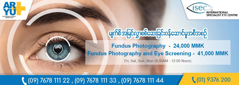 Eye 1008x361